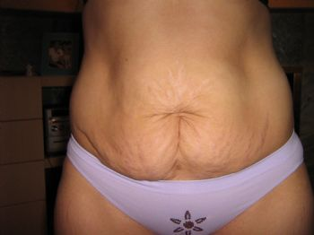 3 weeks since my tummy tuck and pictures for Tattoos on old saggy skin