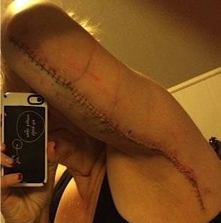 123# lost   Arm Skin Removal Surgery and in general an update