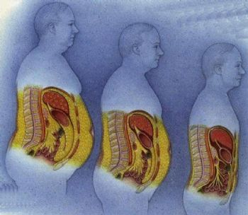belly fat diagram omentum