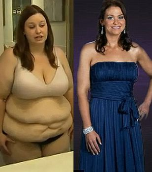 Jacqui from Extreme Makeover--Weight Loss Edition